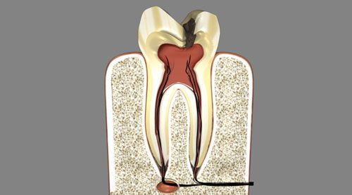 Root Canals